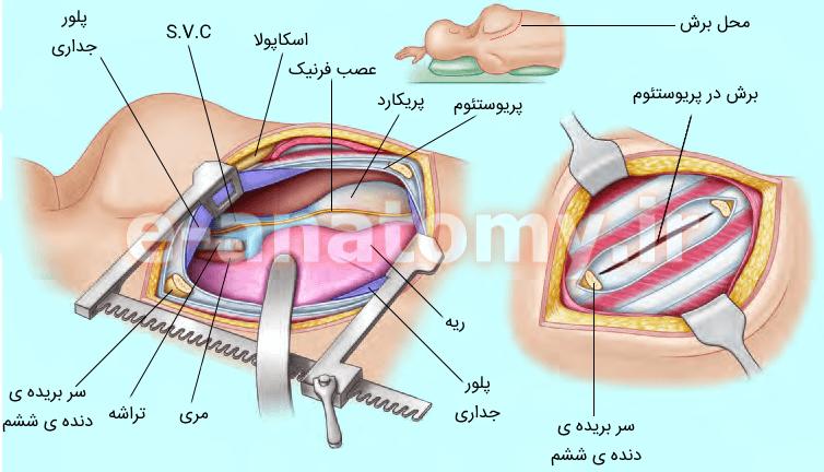 توراکوتومی