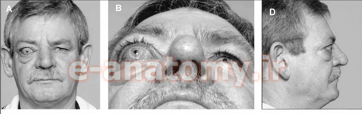اگزوفتالمی در اثر شکستگی اوربیتال