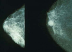 ماموگرام: چپ پستان سالم - راست سرطان سینه