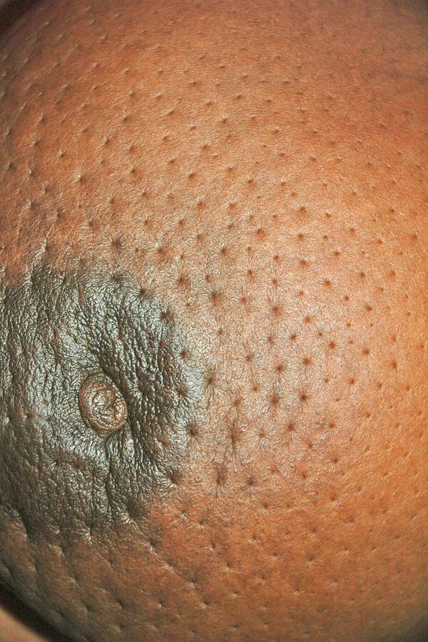 Peau d'orange و نمای پرتقال مانند پوست در اثر منافذ