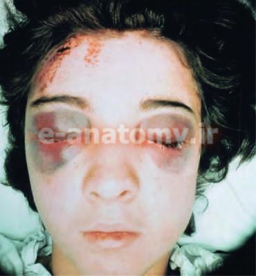 اکیموز اطراف چشم در اثر آسیب به اسکالپ