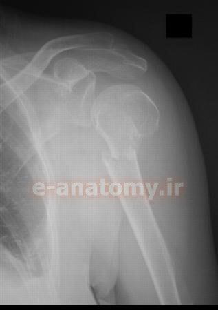 شکستگی گردن جراحی هومروس