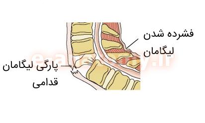 پارگی لیگامان قدامی در اثر آسیب هایپراکستنشن