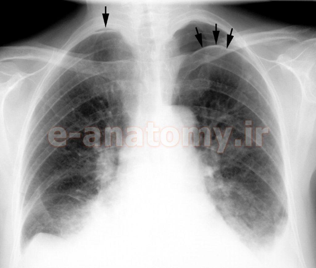 پنوموتوراکس (به مچاله شدن ریه ها در اثر هوای مزاحم توجه کنید)