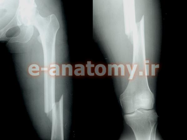 شکستگی مارپیچی تنه ی استخوان فمور
